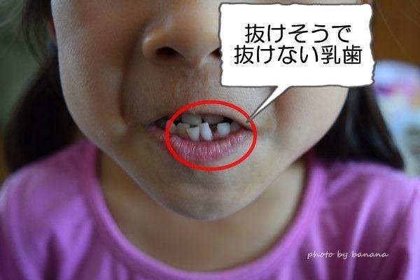 乳歯抜ける前 痛い