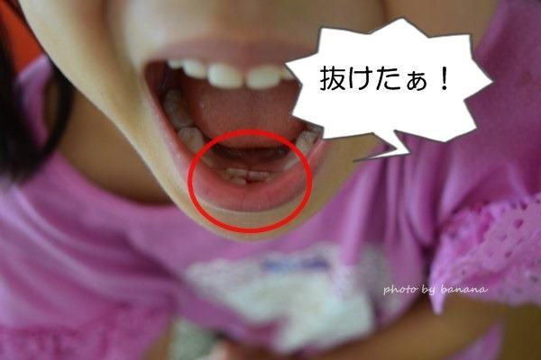 乳歯抜ける前に後ろから永久歯が生える