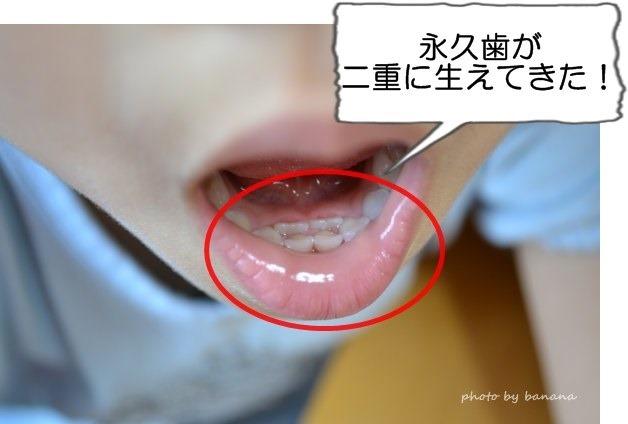乳歯が抜ける前に永久歯が生える