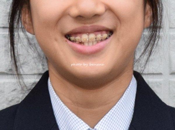 歯列矯正 中学生 永久歯がない