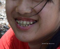 永久歯欠損 先天的に永久歯が無い 矯正