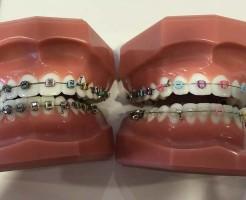 永久歯が無い 先天性欠損歯の矯正ブログ
