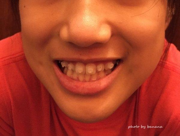 永久歯が無い 先天性欠損歯 歯列矯正