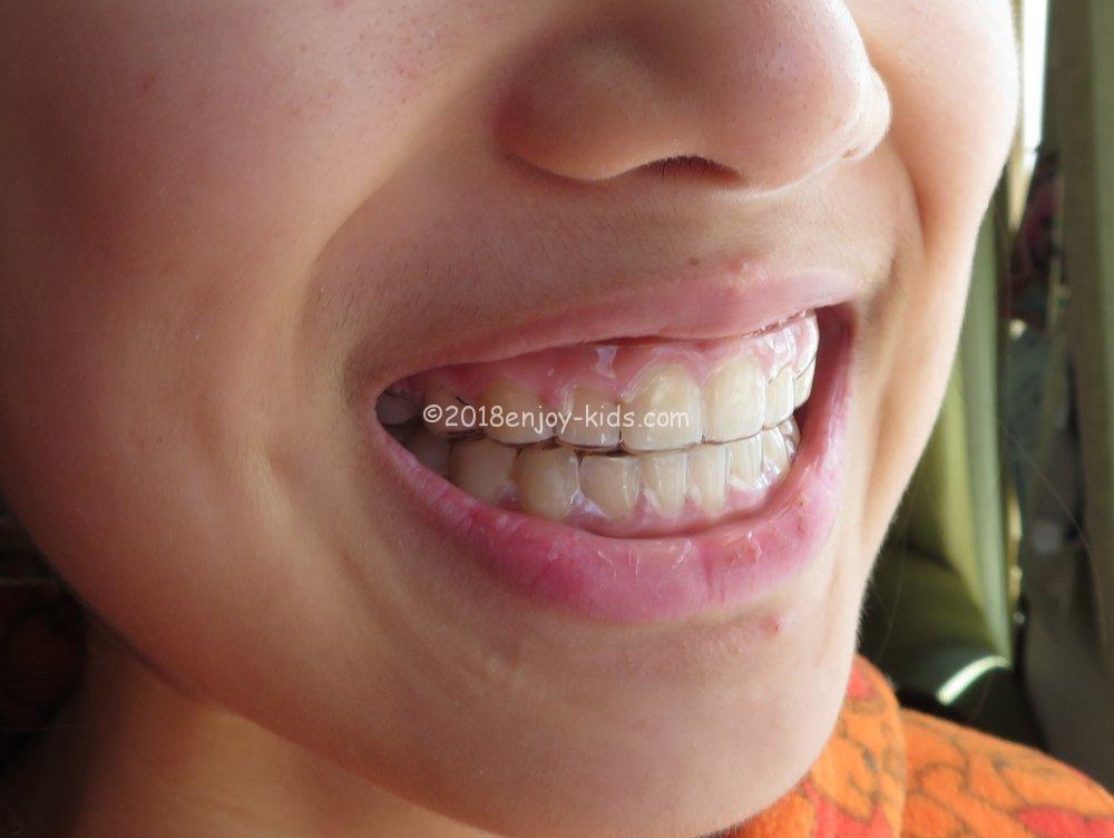 永久歯欠損 歯列矯正 終了